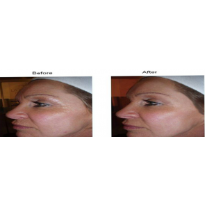 Caci Results